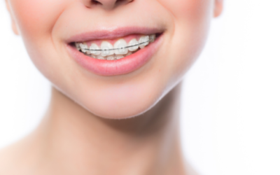 Confused about braces as an adult?
