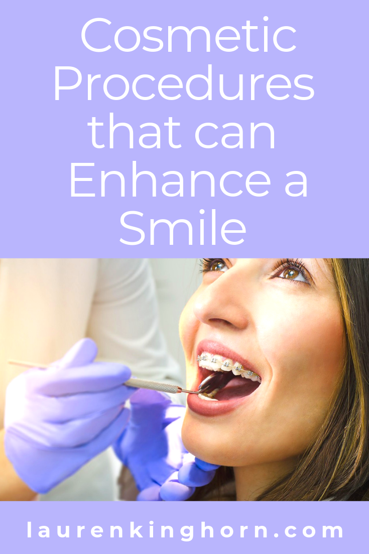 Have you considered any cosmetic dental procedures? Here are a few ideas you could use to enhance your smile. #cosmeticprocedurestoenhanceasmile #cosmeticdentistry #cosmeticdentist