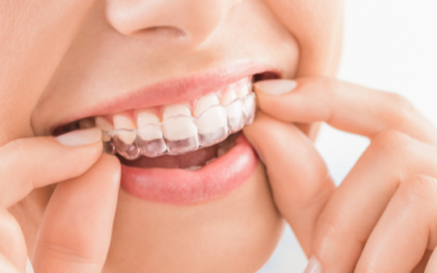 Invisalign at Your Local Dental Clinic