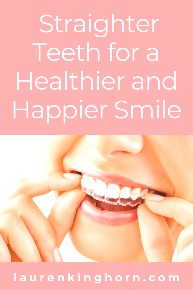 Ever considered having your teeth straightened? Here's how to go about it nowadays and why it's a good idea. #straighterteeth #healthysmile # happysmile
