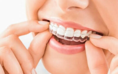 Thoughts about Braces in Kings Hill