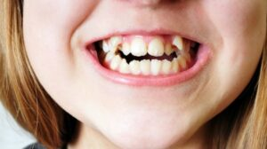 Crooked Teeth Embarrassment