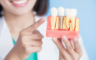 Dental Implants – Are They Worth the Procedure?