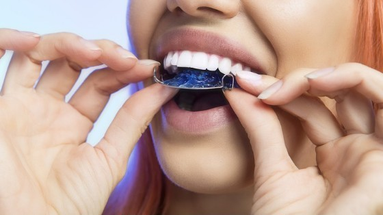 Wearing Retainers after Dental Braces